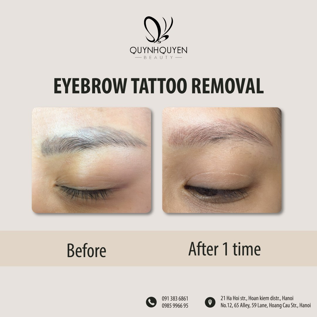 EYEBROWS TATTOO REMOVAL - Quynh Quyen Beauty